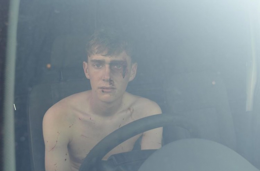 Purdylee Drake - A young man behind the steering wheel of a car looking out through the windscreen with cuts and bruises on his face
